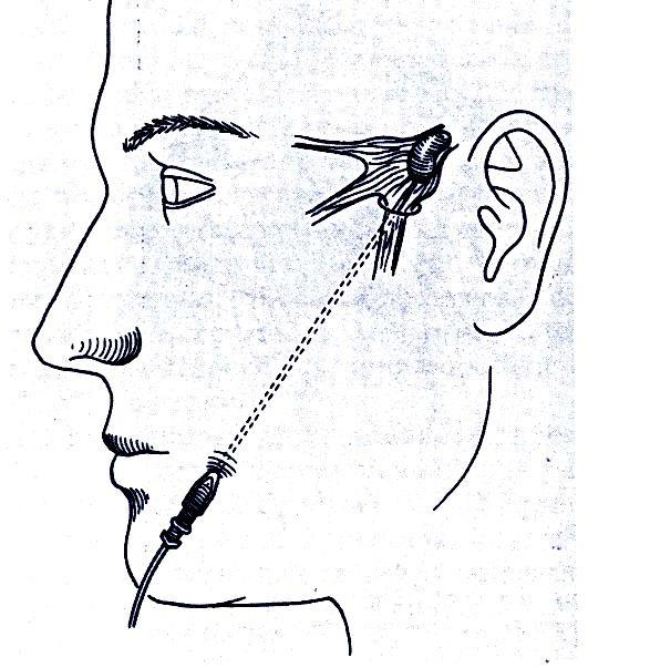 νευραλγία τριδύμου σχήμα 2