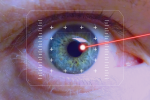 Αθλητισμός και επεμβάσεις laser στα μάτια