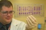 Τεστ DNA για ασθενείς με καρκίνο του προστάτη