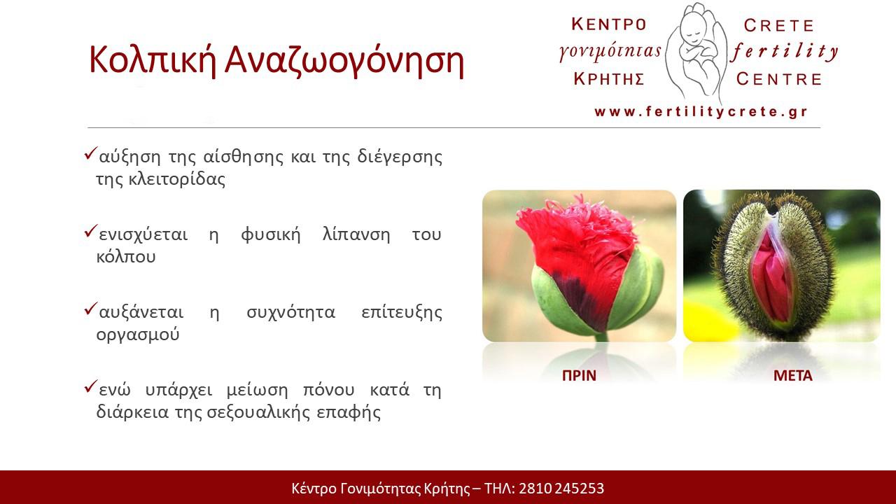 Crete Fertility Centre Kolpikh anazwogonhsh