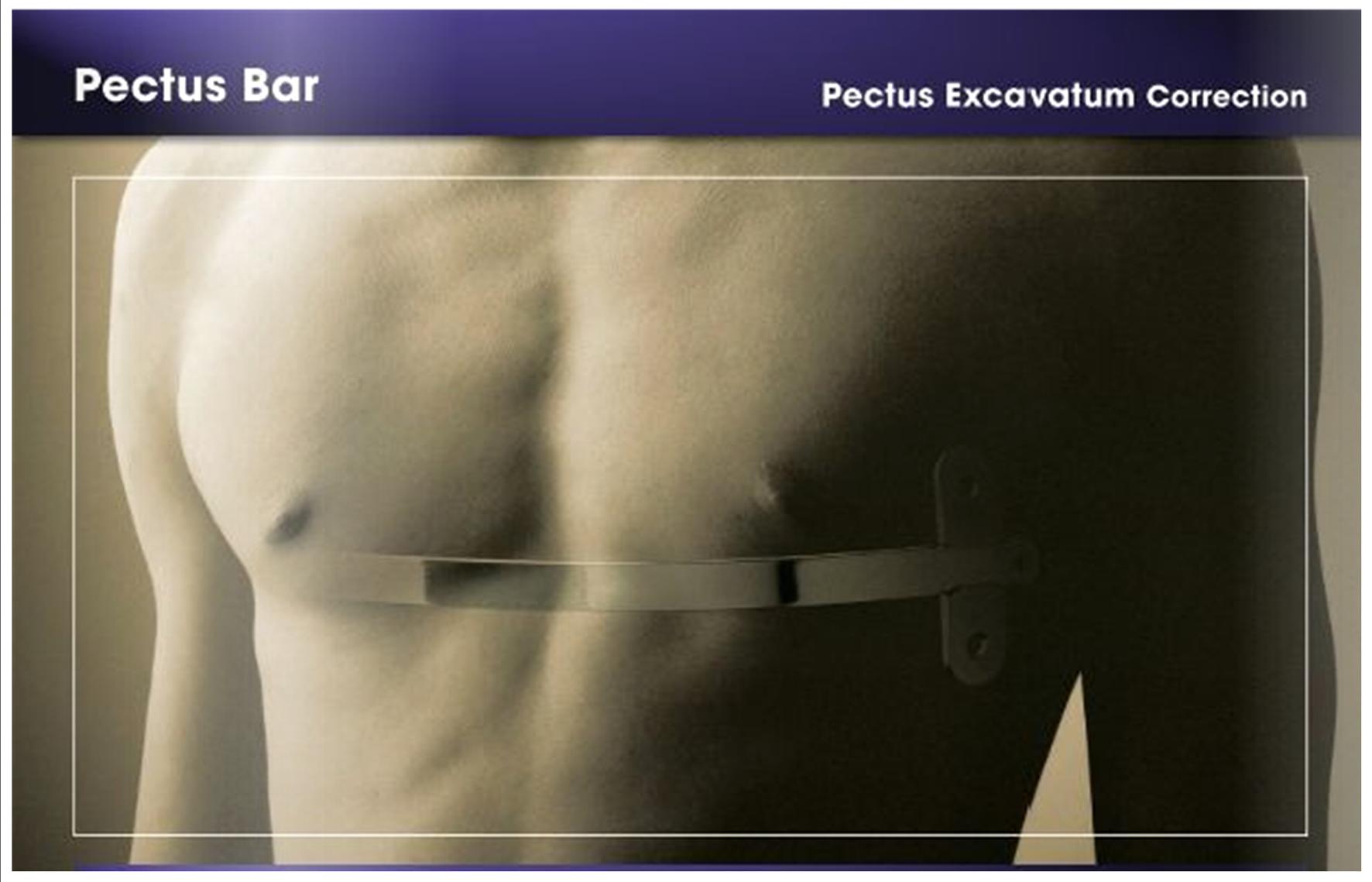 pectus bar b
